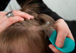Реальные способы вывести вшей у ребенка