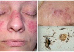 Подкожный клещ на лице – особенности лечения